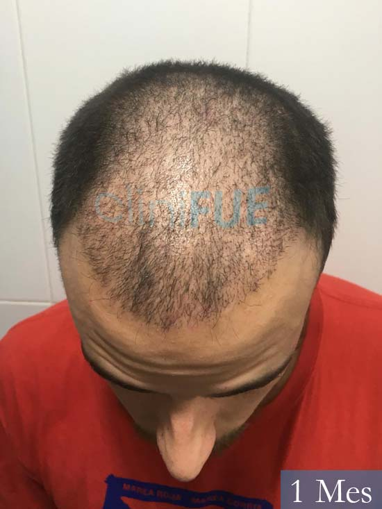 Asier 29 Alava injerto de pelo 1 mes 2