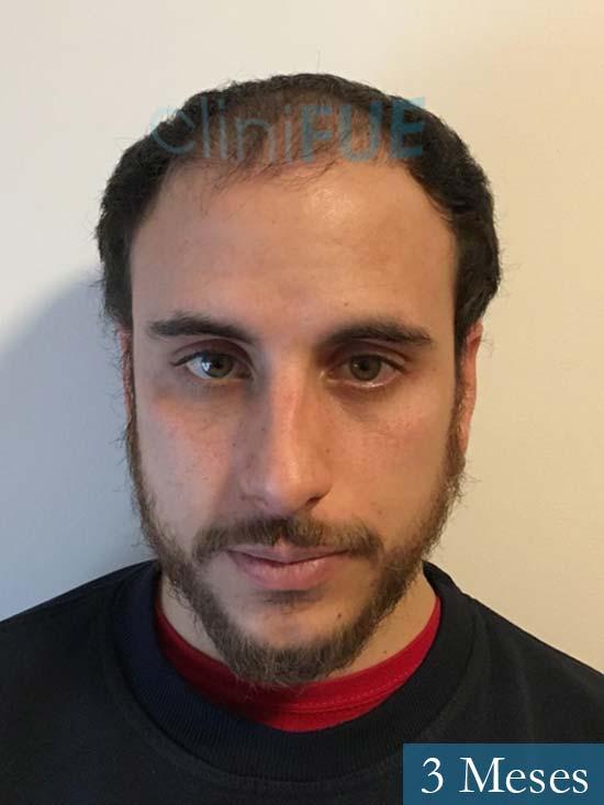 Asier 29 Alava injerto de pelo 3 meses