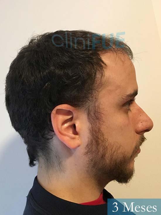 Asier 29 Alava injerto de pelo 3 meses 4