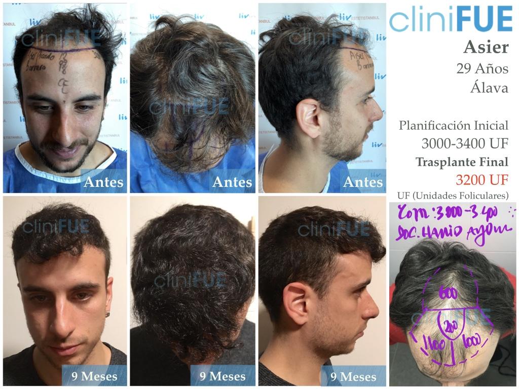 Asier 29 Alava injerto de pelo
