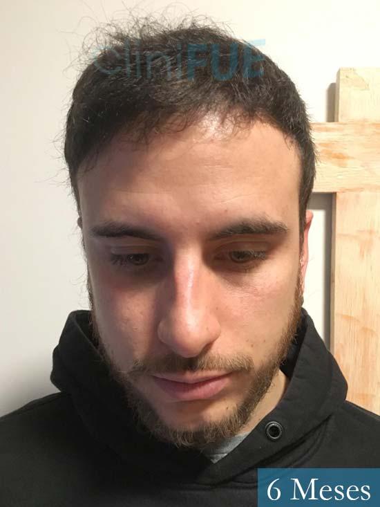 Asier 29 Alava injerto de pelo 6 meses