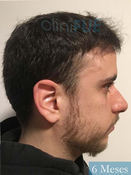 Asier 29 Alava injerto de pelo 6 meses 4