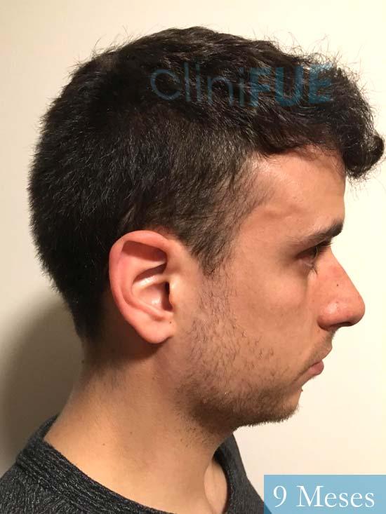 Asier 29 Alava injerto de pelo 9 meses 4