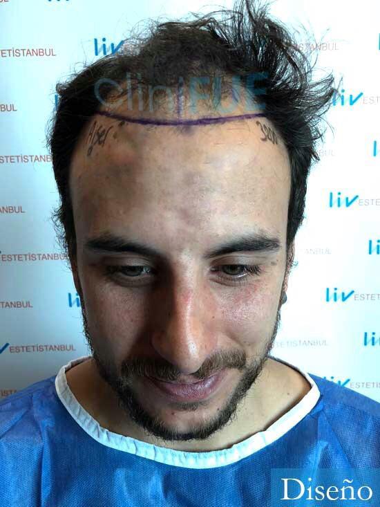 Asier 29 Alava injerto de pelo dia operacion antes