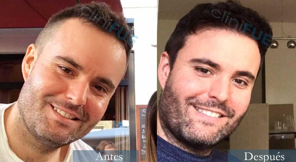 Carlos 36 años Paises Bajos 2500 UF injerto capilar