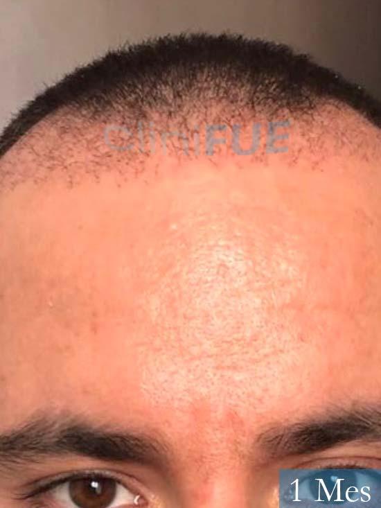 Carlos 36 países bajos injerto de pelo 1 mes