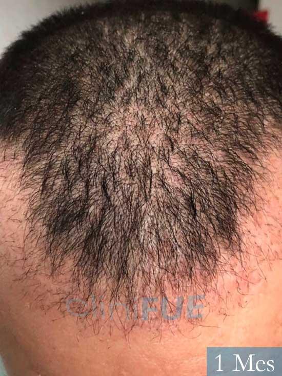 Carlos 36 países bajos injerto de pelo 1 mes 2