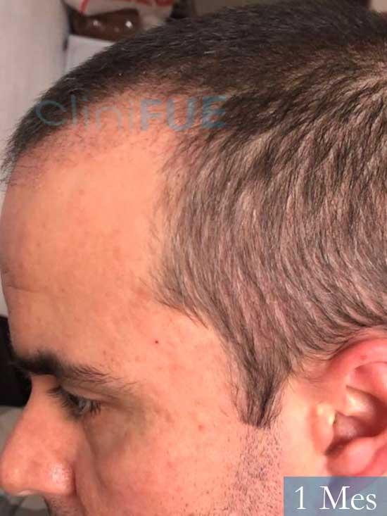 Carlos 36 países bajos injerto de pelo 1 mes 4