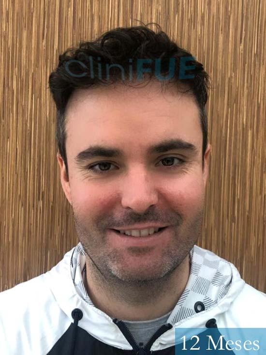 Carlos 36 países bajos injerto de pelo 12 meses