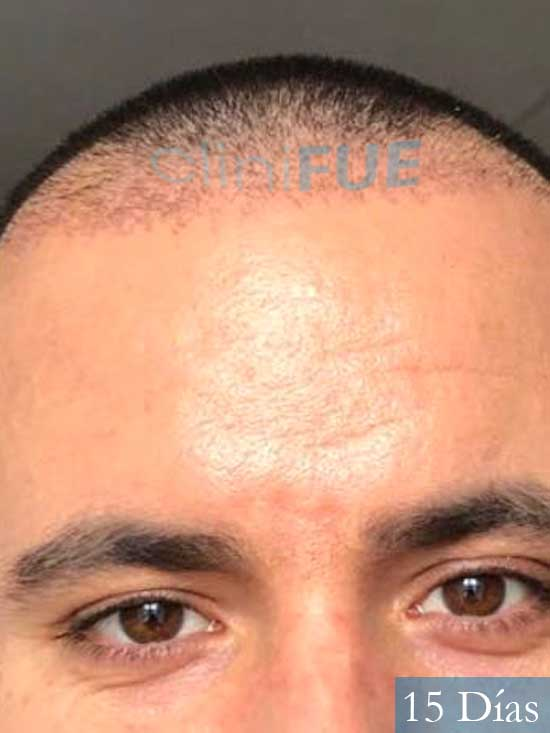 Carlos 36 países bajos injerto de pelo 15 dias