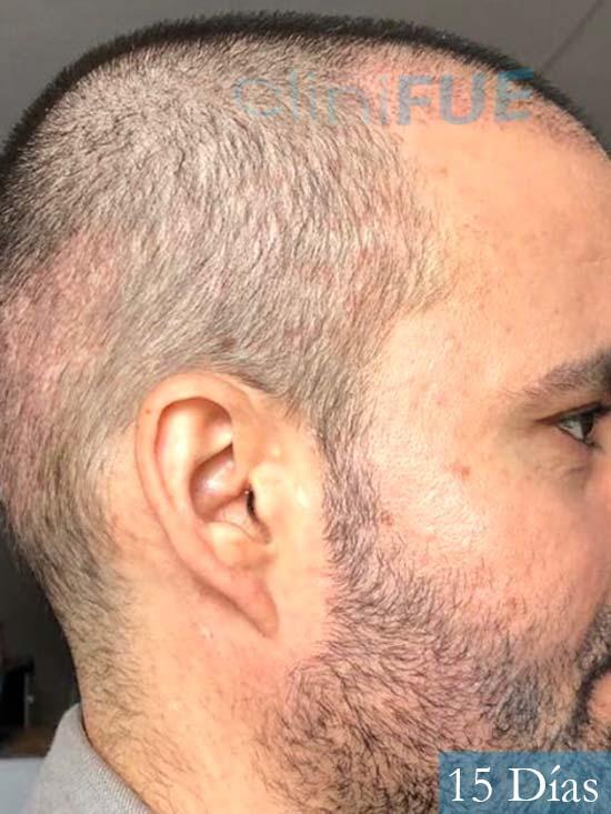 Carlos 36 países bajos injerto de pelo 15 dias 3