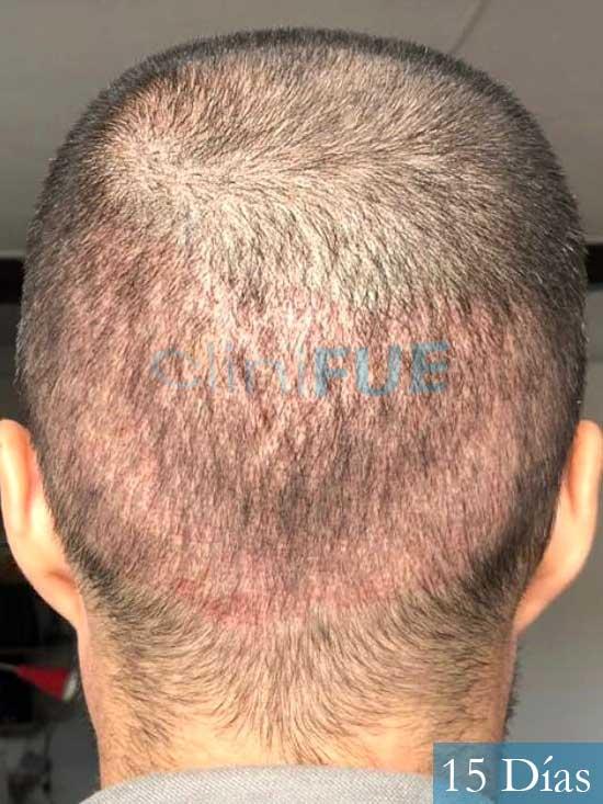 Carlos 36 países bajos injerto de pelo 15 dias 5