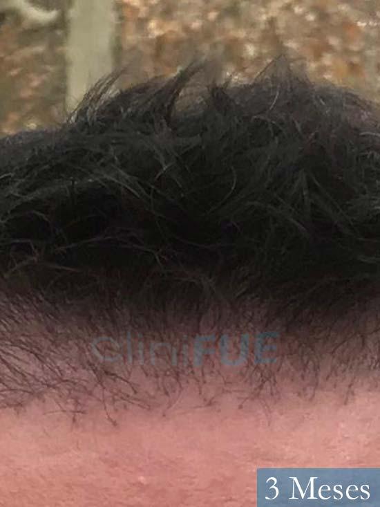 Carlos 36 países bajos injerto de pelo 6 meses