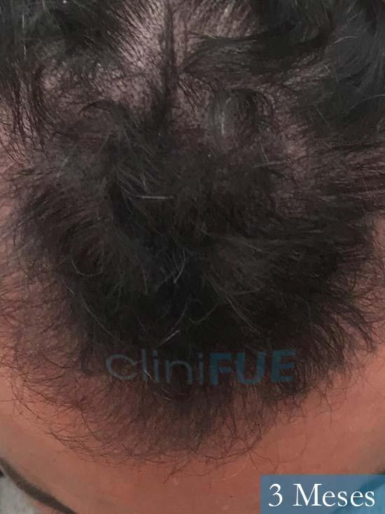 Carlos 36 países bajos injerto de pelo 6 meses 2
