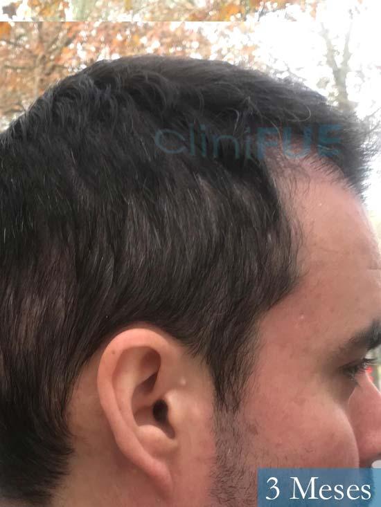 Carlos 36 países bajos injerto de pelo 3 meses