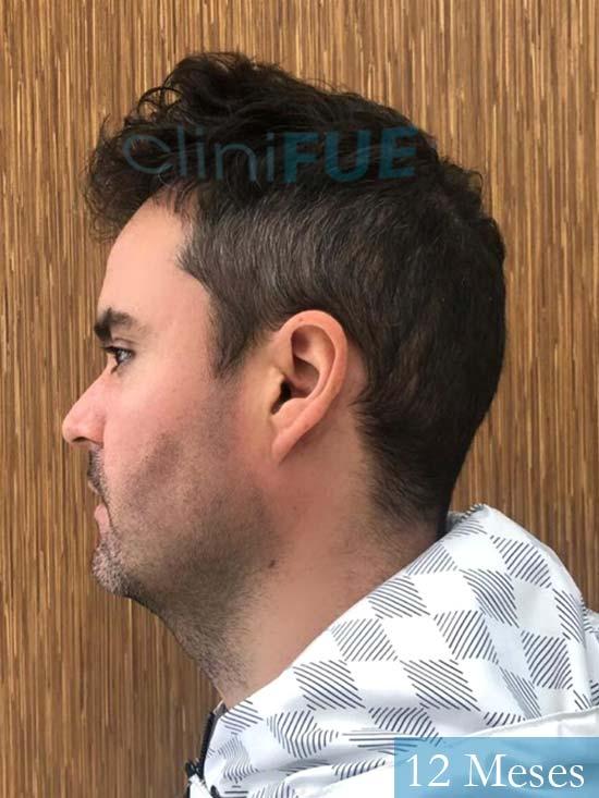 Carlos 36 países bajos injerto de pelo 12 meses 3