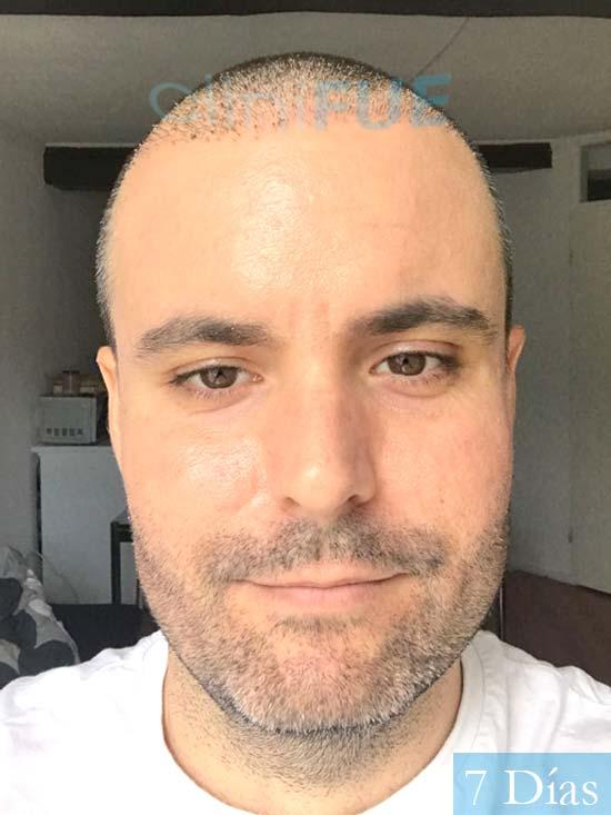 Carlos 36 países bajos injerto de pelo 7 dias