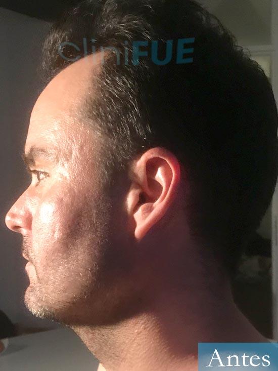 Carlos 36 Paises Bajos injerto de pelo Antes 4