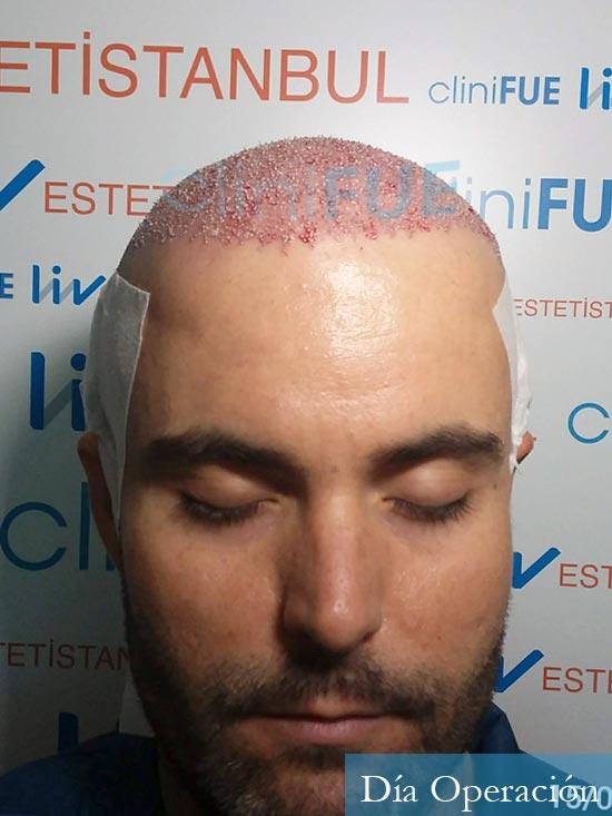 Carlos 36 países bajos injerto de pelo dia operacion