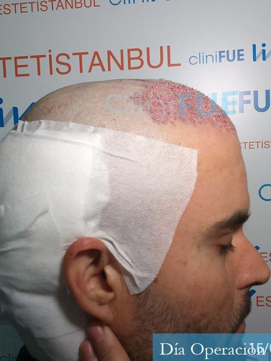 Carlos 36 países bajos injerto de pelo dia operacion 3