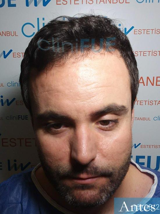 Carlos 36 países bajos injerto de pelo dia operacion antes