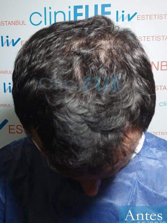 Carlos 36 países bajos injerto de pelo dia operacion antes 2