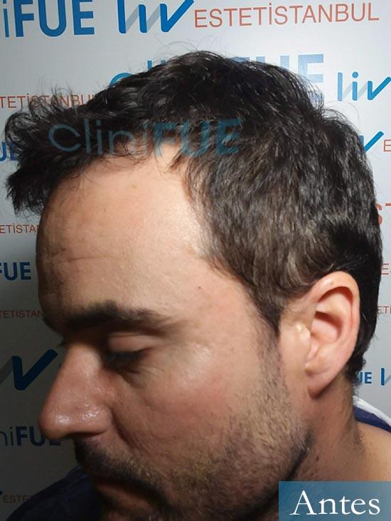 Carlos 36 países bajos injerto de pelo dia operacion antes 3
