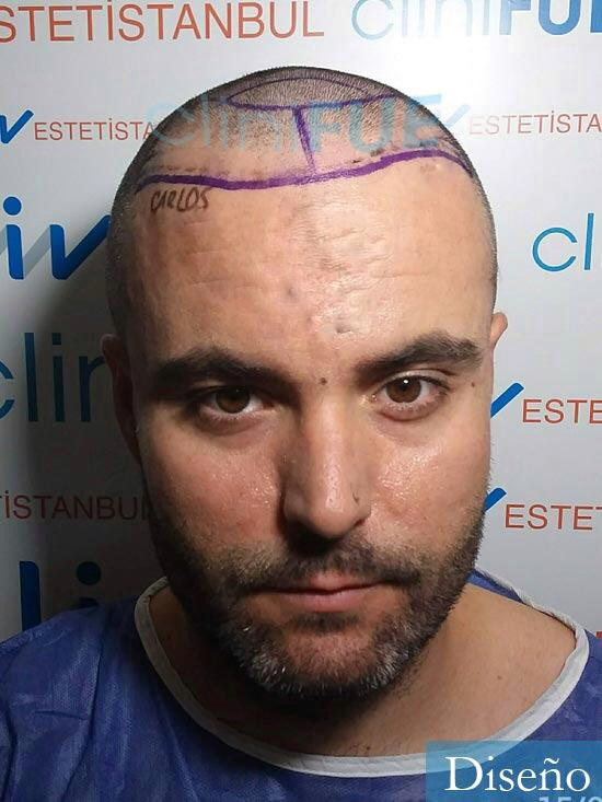 Carlos 36 países bajos injerto de pelo dia operacion diseno