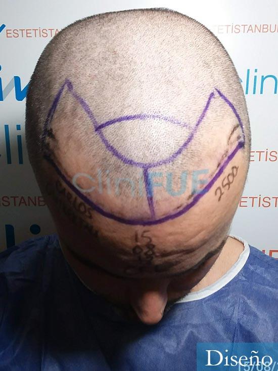 Carlos 36 países bajos injerto de pelo dia operacion diseno 2