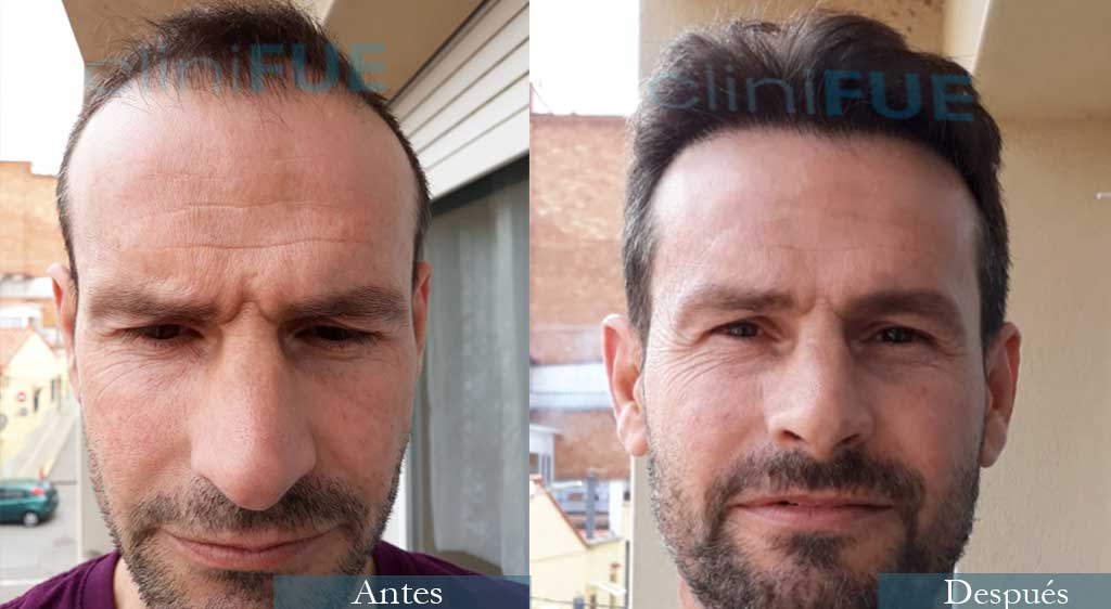 Daniel 41 años 3600 UF injerto capilar