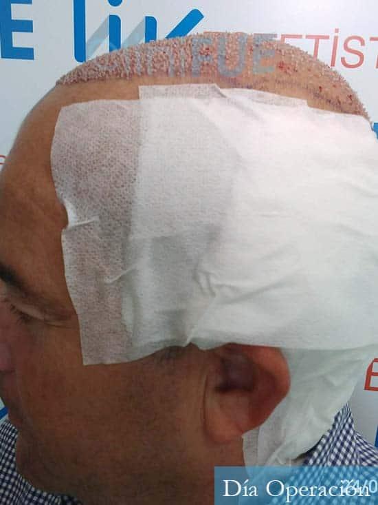 Diego 48 Almeria injerto de pelo dia operacion 4