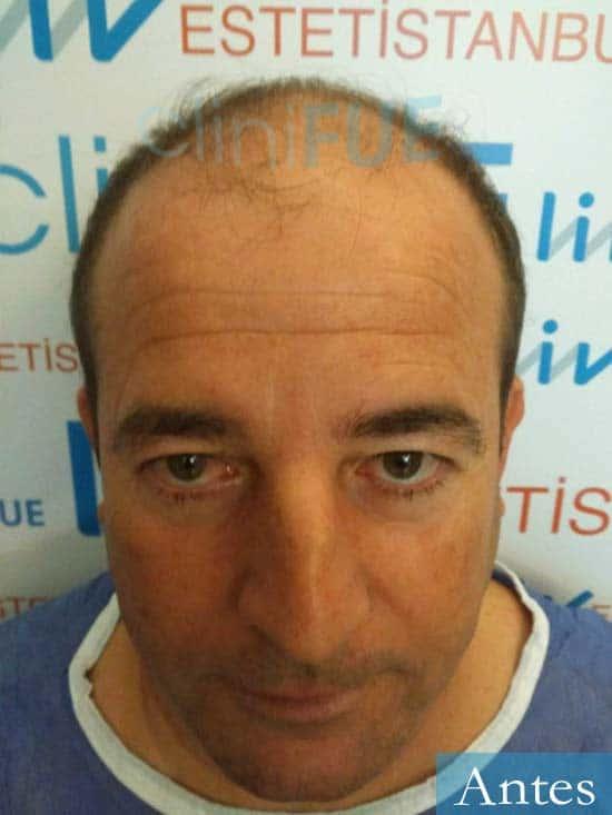 Diego 48 Almeria injerto de pelo dia operacion antes