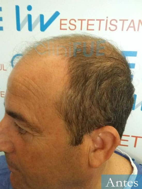Diego 48 Almeria injerto de pelo dia operacion antes 4