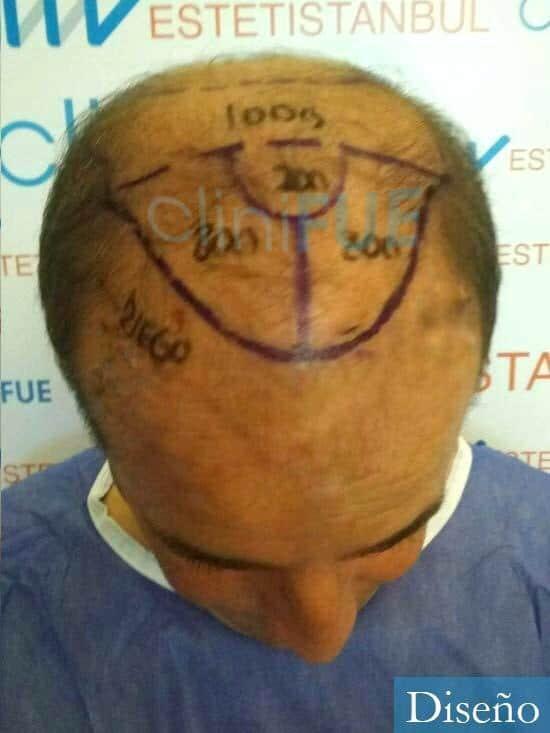 Diego 48 Almeria injerto de pelo dia operacion diseno