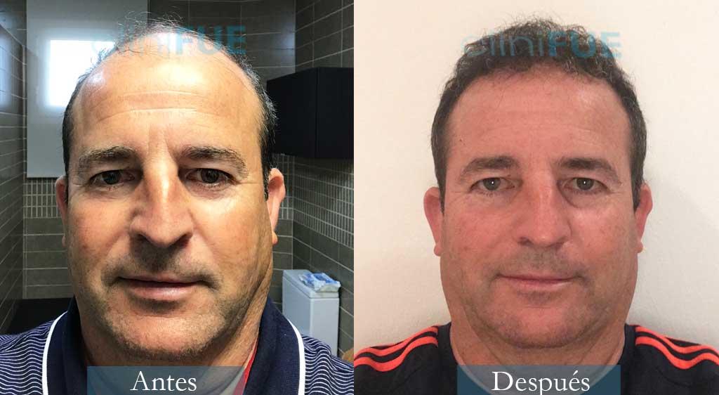 Injerto capilar de Diego 48 Años de Almería con cliniFUE ¡Qué contento está!