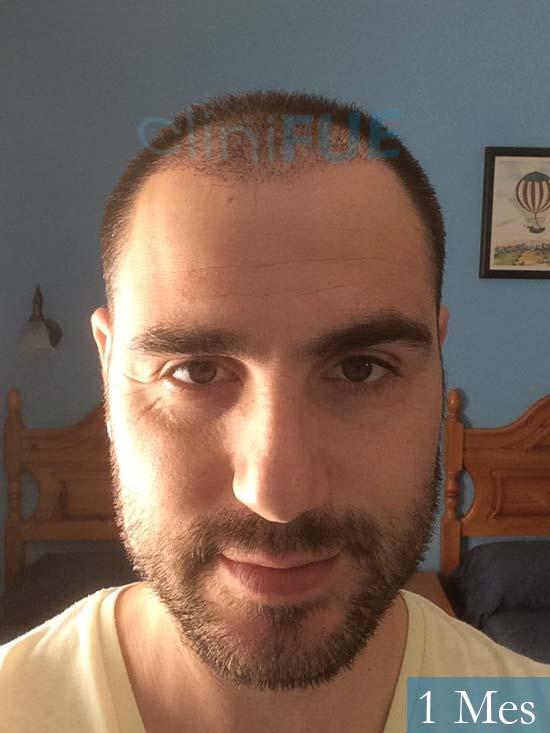 Fran 32 alicante injerto de pelo 1 mes