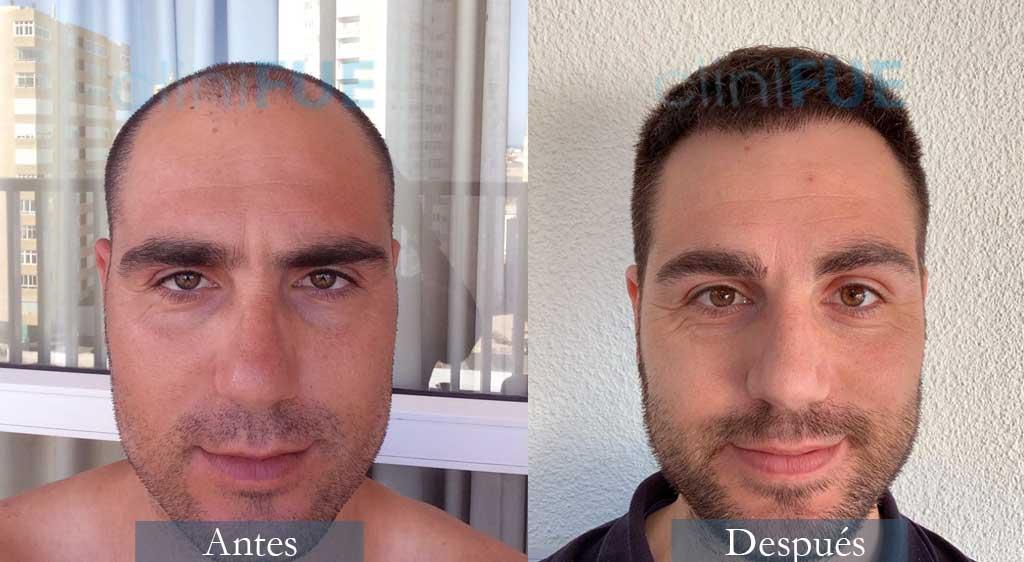 Injerto capilar de Fran 32 Años de Alicante con cliniFUE