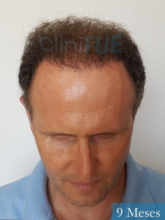 Francisco Javier 47 Almeria injerto de pelo 9 meses 2