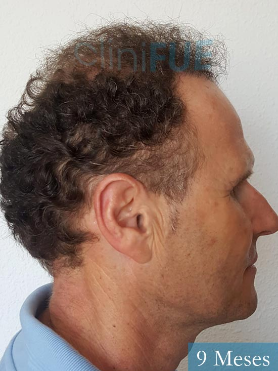 Francisco Javier 47 Almeria injerto de pelo 9 meses 3