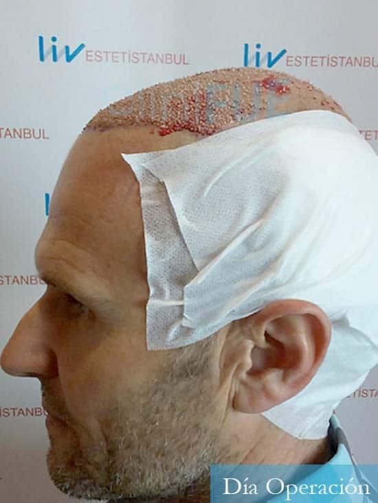 Francisco Javier 47 Almeria injerto de pelo dia operacion 4