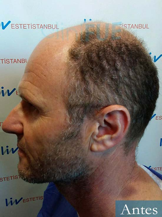 Francisco Javier 47 Almeria injerto de pelo dia operacion antes 4
