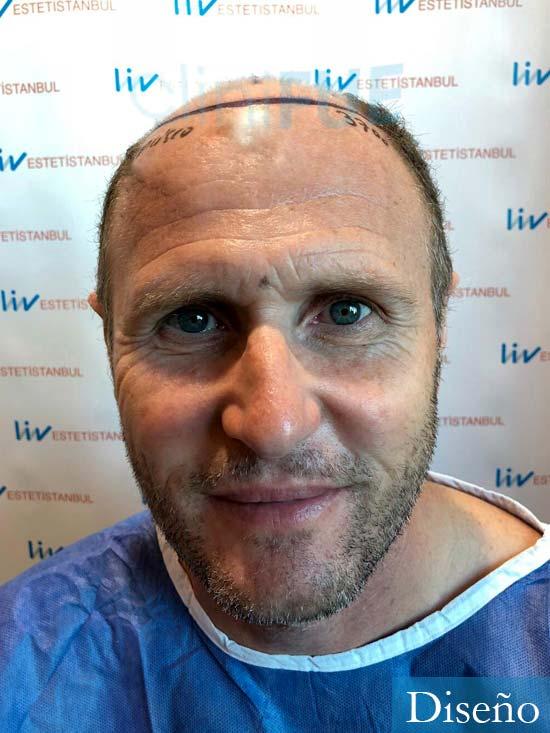 Francisco Javier 47 Almeria injerto de pelo dia operacion diseno