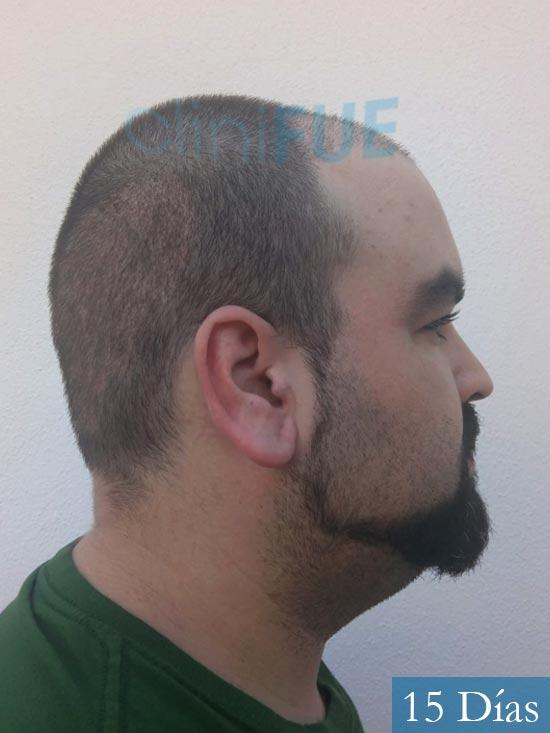 Francisco 30 Cordoba injerto de pelo 15 dias 3