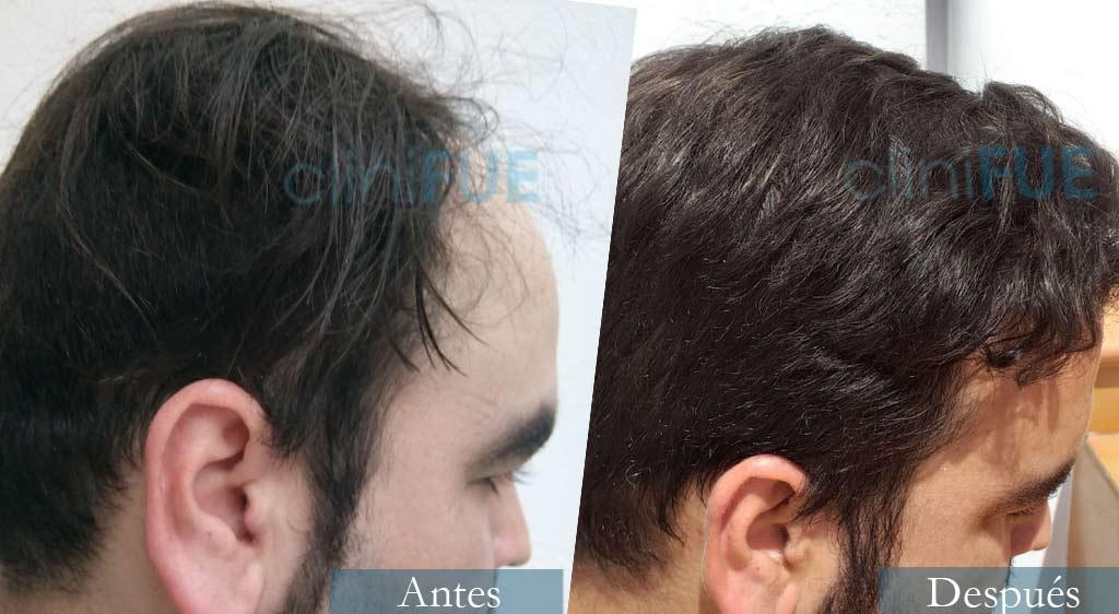 Injerto capilar de Francisco 30 Años de Córdoba con cliniFUE