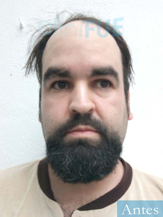 Francisco 30 Cordoba injerto de pelo dia operacion Antes