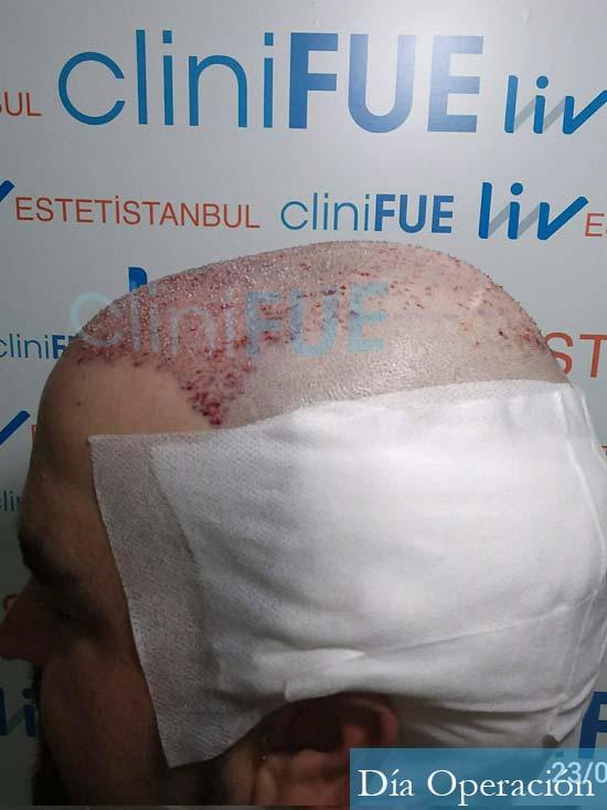 Francisco 30 Cordoba injerto de pelo dia operacion 4