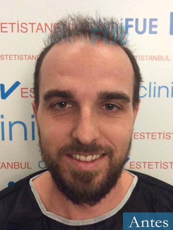 Ivan 33 Sevilla injerto de pelo dia operacion Antes