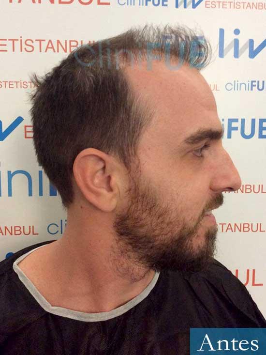 Ivan 33 Sevilla injerto de pelo dia operacion Antes 3