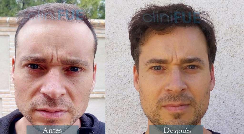 Jose Luis 39 años 3200 UF injerto capilar