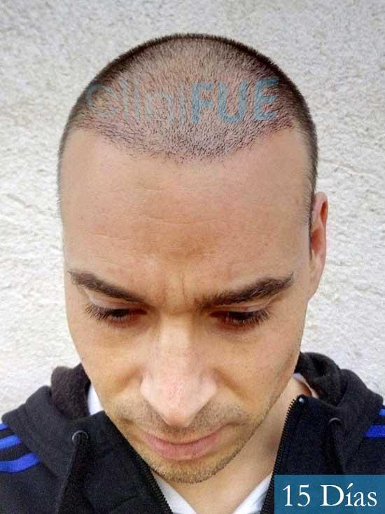 Jose Lusi 39 Madrid injerto de pelo 15 dias 2
